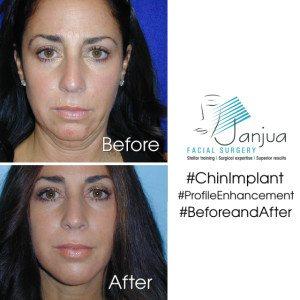 Rhinoplasty and Chin Implant
