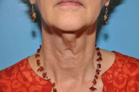 Neck Photos