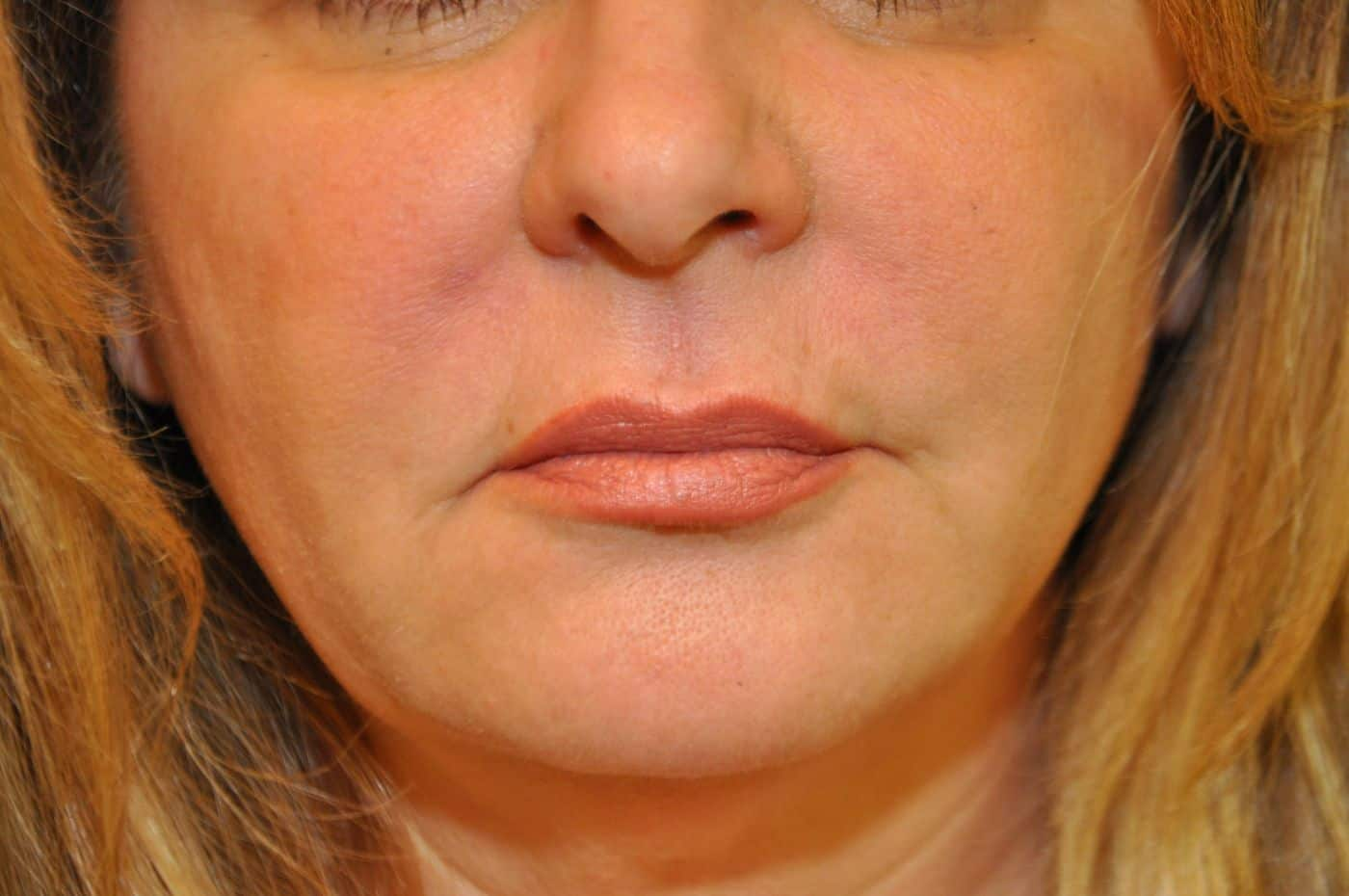 Botox & Fillers Photos