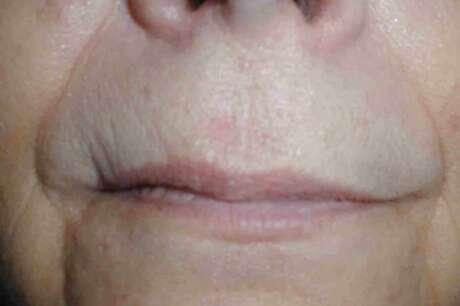 Skin Cancer Photos