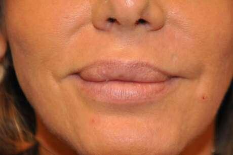 Lip Reduction Photos