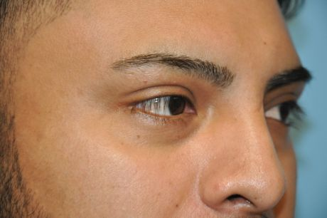 Eyes Photos
