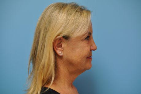 Facial Surgery Photos