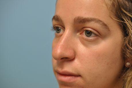 Nose Photos