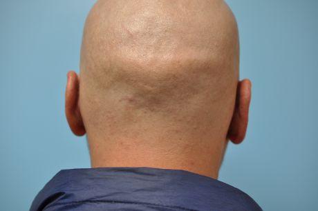 Ears Surgery Photos