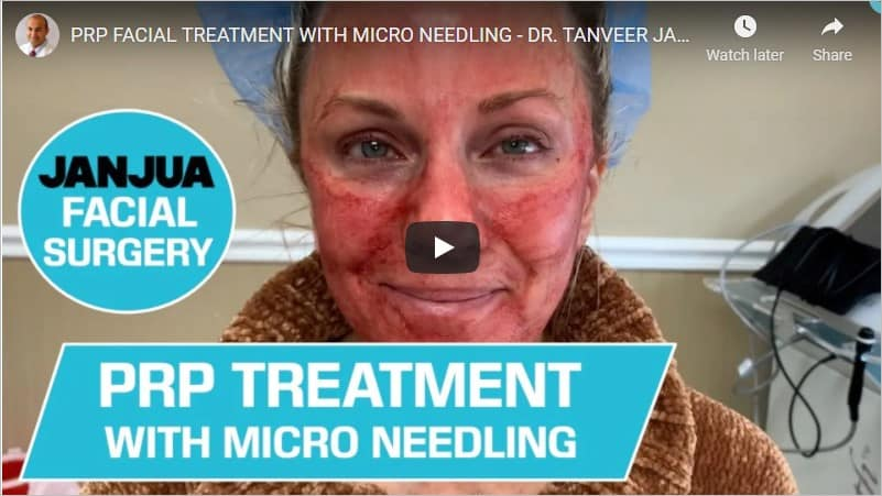 PRP Treatment with Microneedling